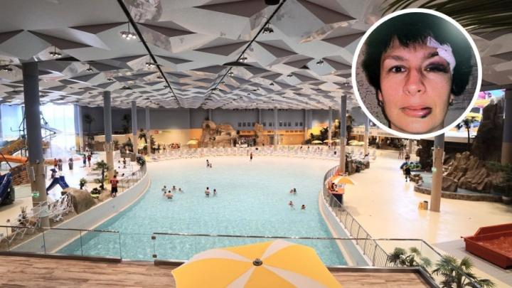 15 швов на рассеченном лице: тюменка неудачно скатилась с горки в аквапарке «ЛетоЛето»