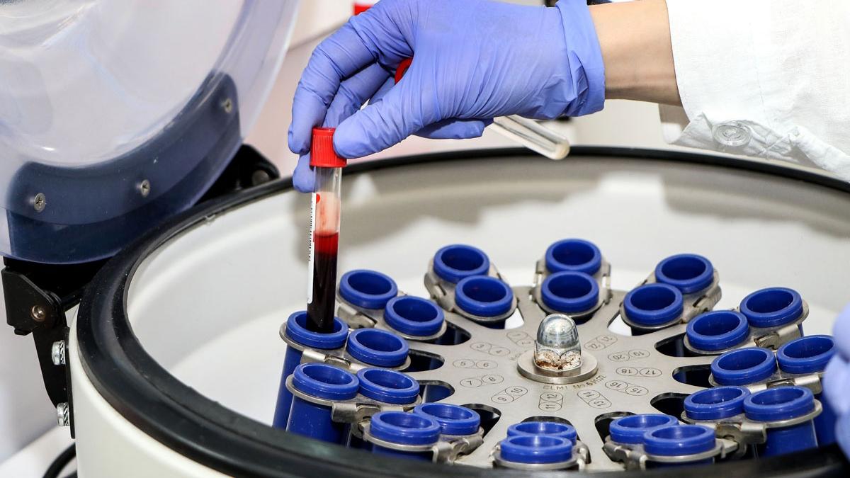 Вирус ВИЧ достаточно хорошо исследовали и подобрали терапию, с которой инфицированные люди могут прожить до старости