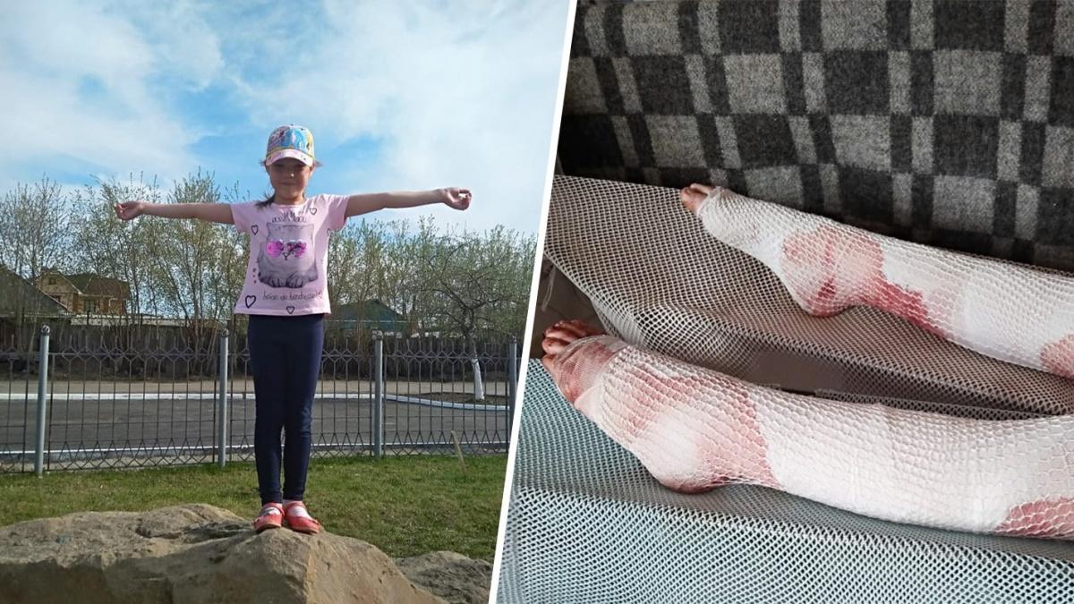 Раскалённое масло попало на ноги семилетней девочке, и она получила тяжелейшие ожоги