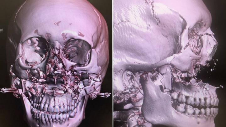 Хирурги БСМП по крупицам собрали раздробленное при аварии лицо девушки