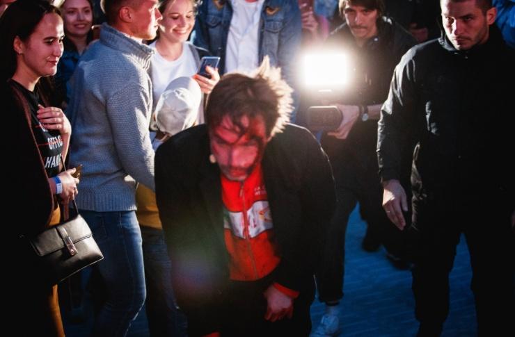 Окровавленный Саша Петров выполз в фан-зону на шоу #Зановородиться