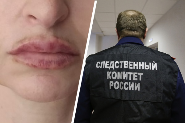 После процедуры, выполненной Еленой Муренко, губы женщины стали болеть, появились шишки и нарывы