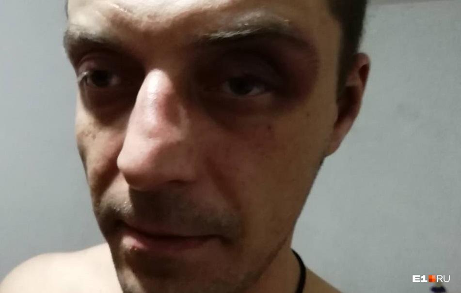 Максим говорит что ему надели мешок на голову и били