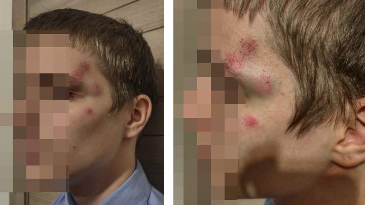 «Он мог его просто убить»: в центре Новосибирска избили 14-летнего сына общественника Ростислава Антонова