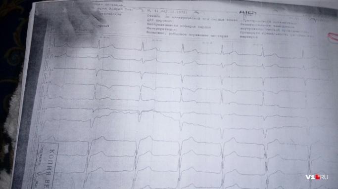 Эксперты сравнивали кардиограммы три раза. В конечном итоге пришли к выводу, что смерть наступила внезапно
