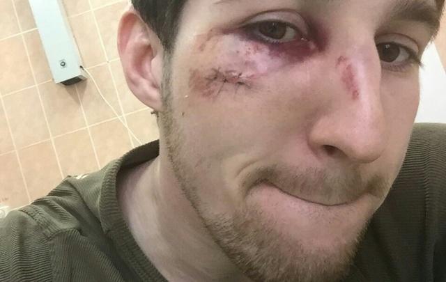МВД Башкирии: двое из нападавших на туймазинского хирурга были пьяны