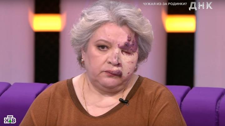 Жительница Стерлитамака считает, что из-за родинки на лице ее воспитывала чужая женщина