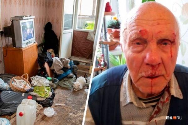 Из-за квартиры Николай постоянно избивал отца