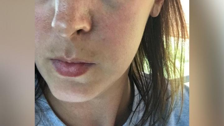 «Схватила за волосы и ударила коленом»: челябинка сломала нос соседке за замечание ребёнку