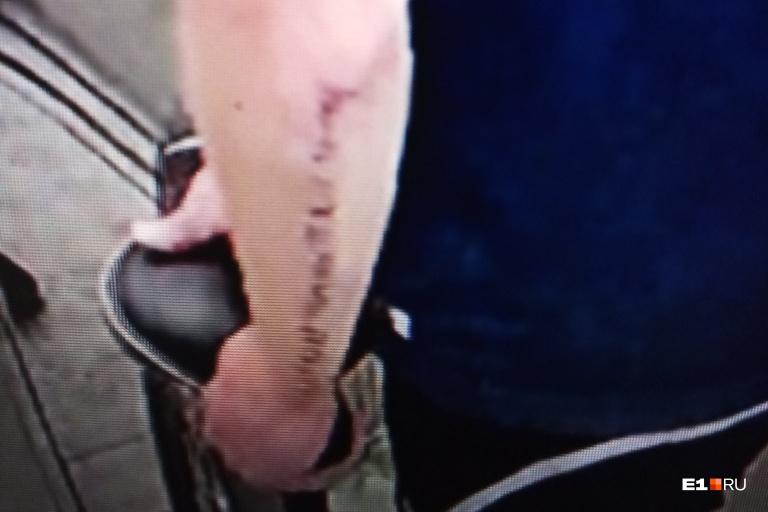 Такая татуировка набита на задней части предплечья похитителя