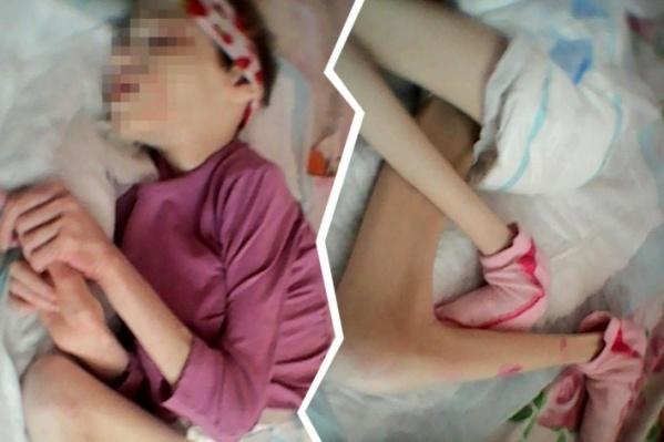 Бывший опекун девочки, страдающей ДЦП, заявила, чтоплемянницу довели до истощения в реабилитационном центре