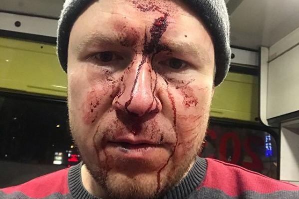Мужчина опубликовал фото своего окровавленного лица на странице в соцсети