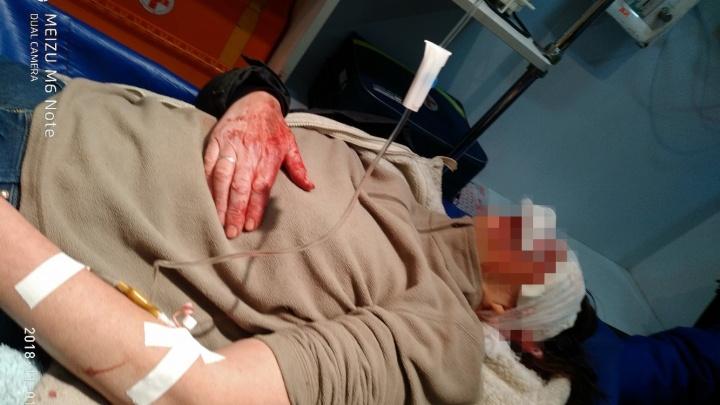 «Травма головы и сломанные ребра»: в Уфе разыскивают очевидцев аварии
