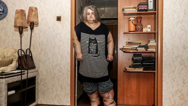 «Летального исхода нет, но и жизни нет тоже»: нижегородка о своей страшной болезни — слоновости