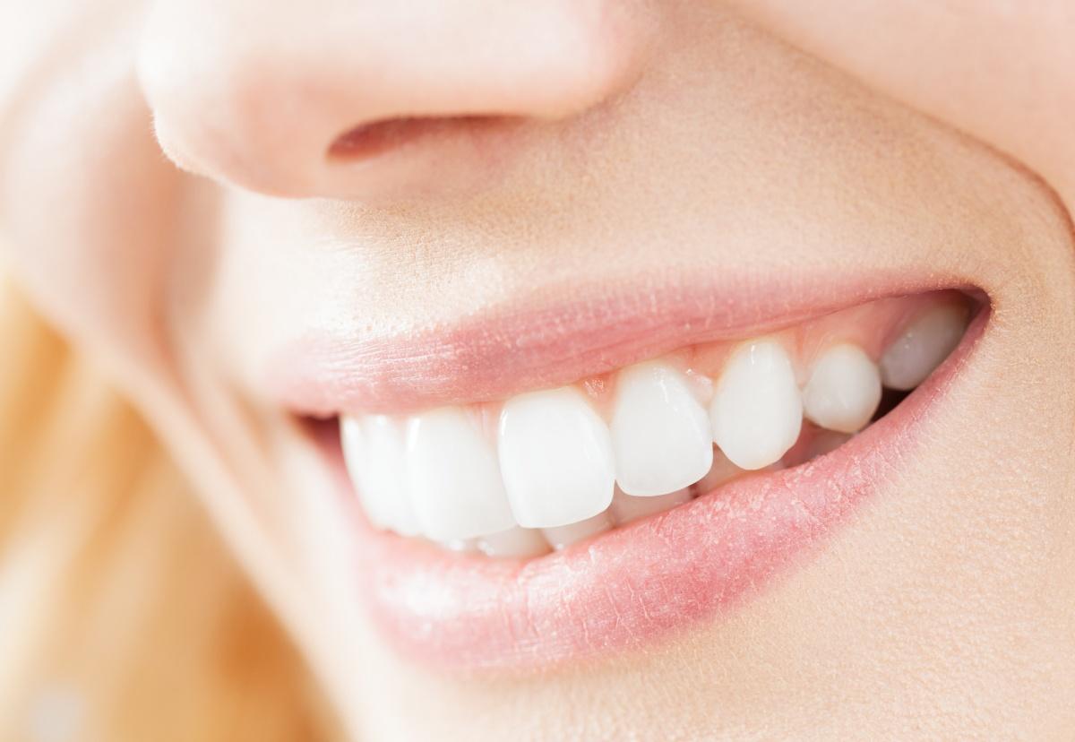 Нижегородская клиника поможет высветлить улыбку на два-три тона