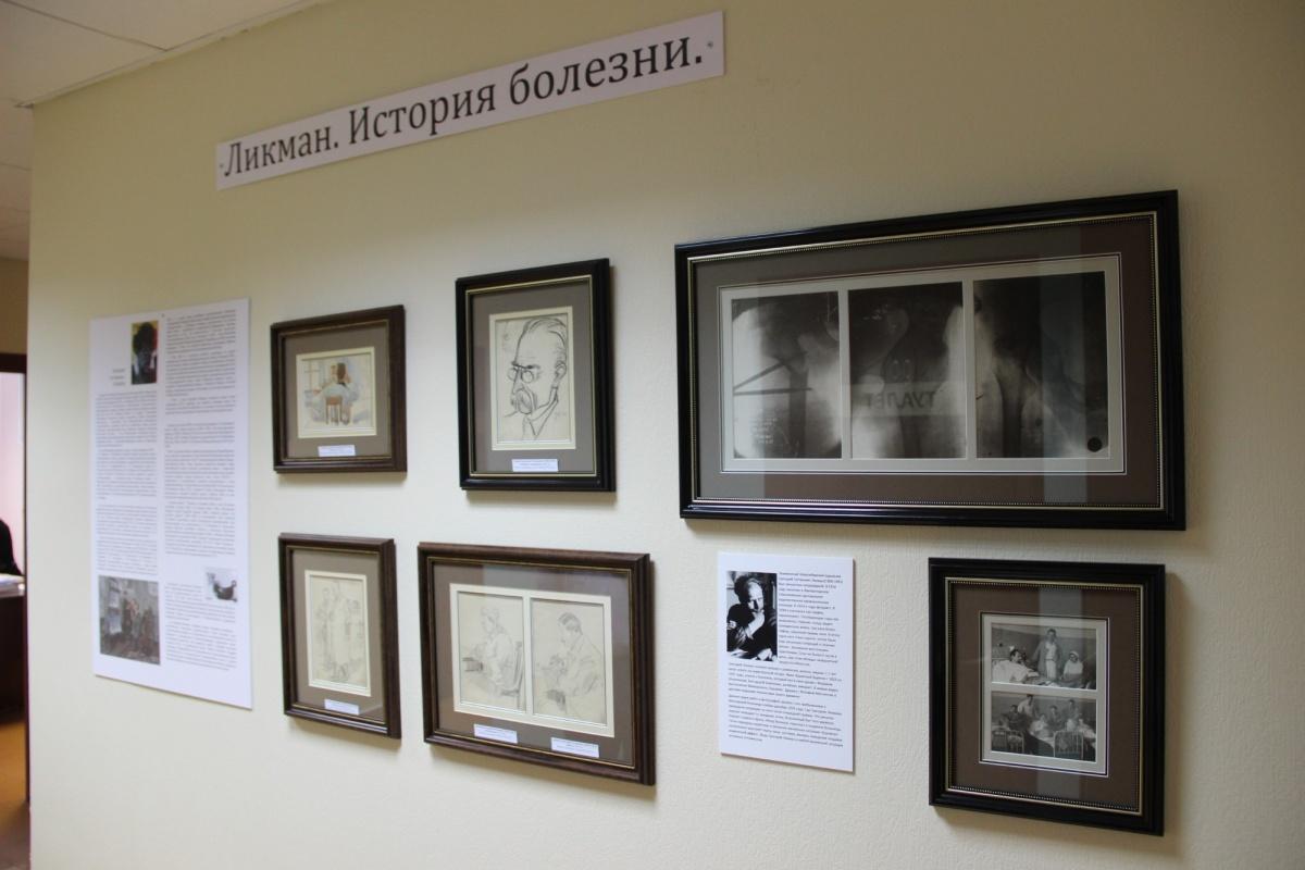 Рентгеновские снимки перелома бедренной кости Григория Ликмана