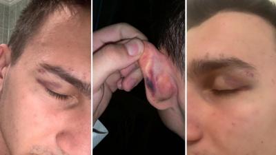«Набросились вшестером»: ростовского студента избили после общения в чате одногруппников