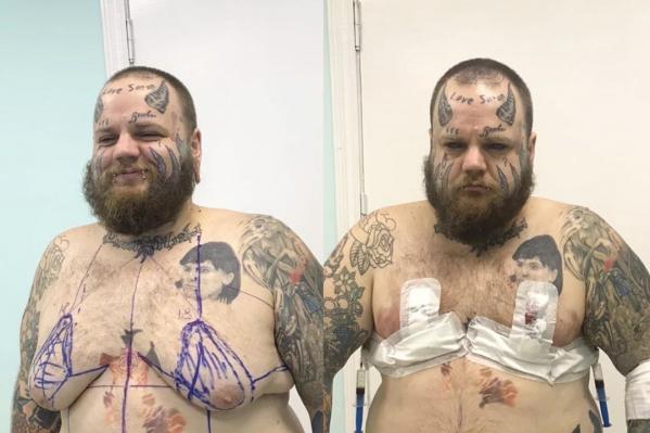 Несмотря на эпатажный внешний вид, блогер стеснялся своего тела