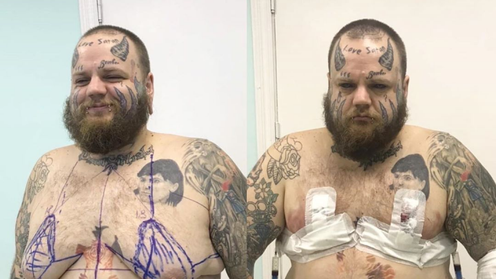 «Я вёл себя как мегамразь»: тольяттинский блогер Илья «Бомбер» уменьшил грудь