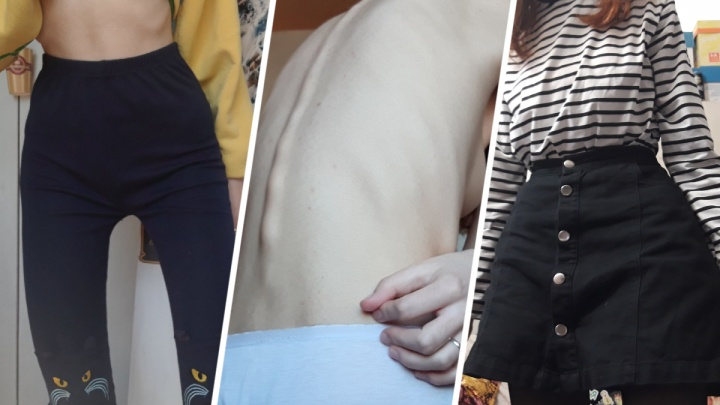 Похудеть любой ценой: три истории юных ростовчанок, для которых диеты превратились в опасную манию