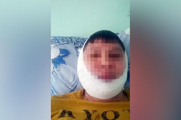 Как мужчина сломал челюсть, следователь даже не попытался объяснить
