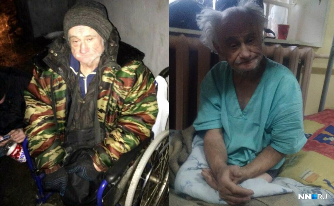 Валерий Ефимович до и после спасения.