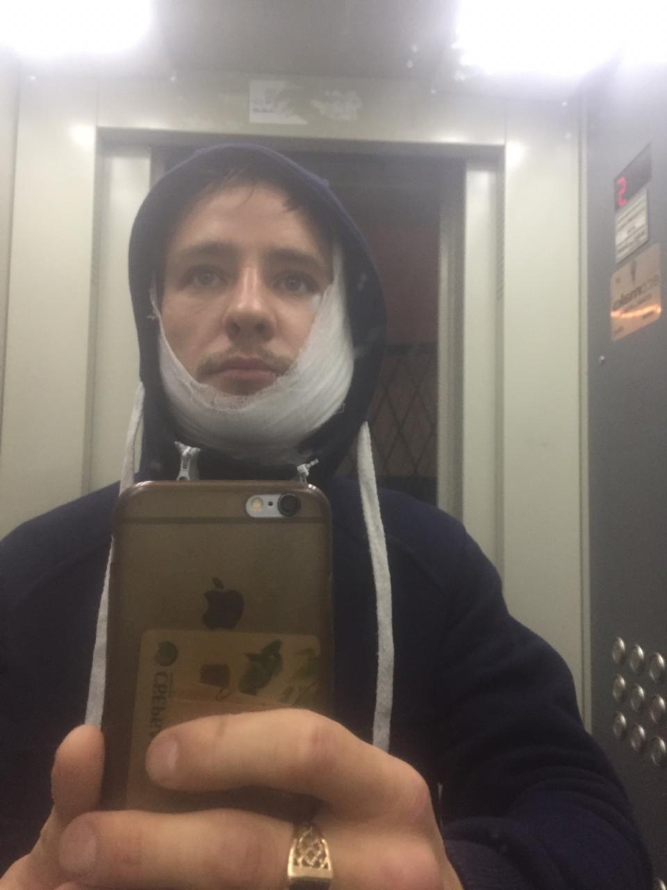 После конфликта водитель достал нож и ударил Ведерникова в лицо