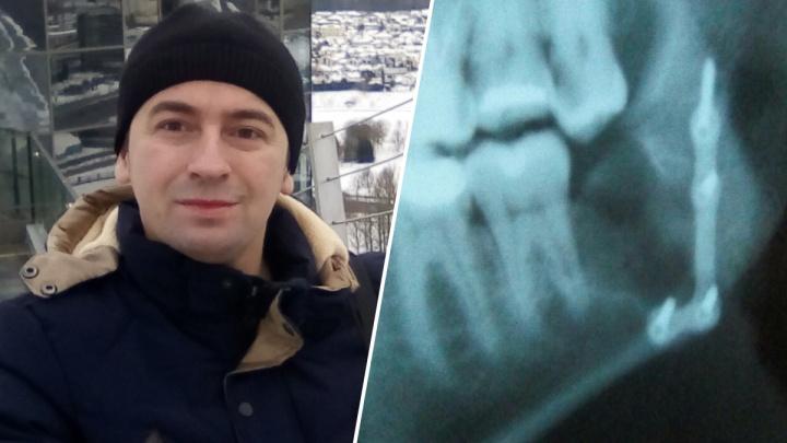 «Это на всю жизнь»: ярославцу во время лечения зуба мудрости сломали челюсть