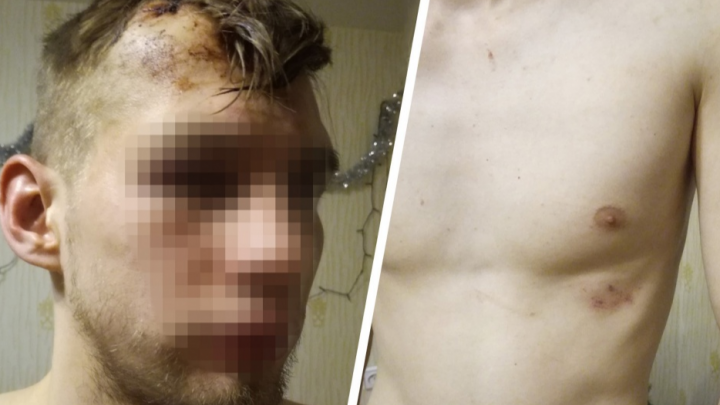 В Челябинске осудили охранника, ударившего шокером и пристегнувшего наручниками к батарее пациентов