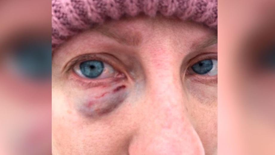 По словам Дарьи, ее оппонентка дралась как боксер. Одним из ударов она поставила женщине большой синяк под глазом
