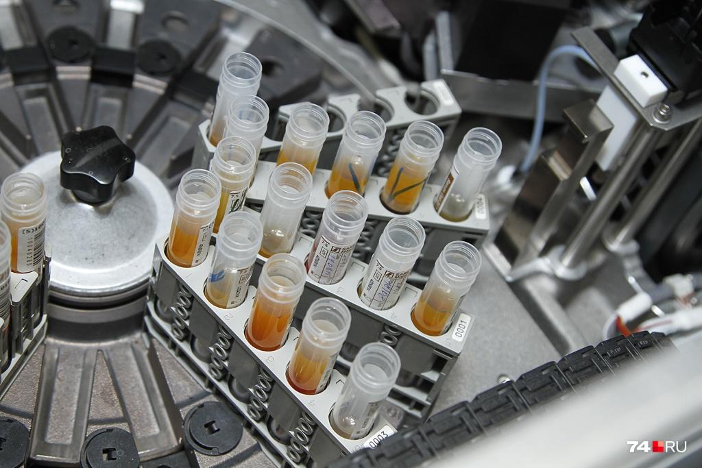 В сыворотке крови будут искать маркеры хронического алкоголизма