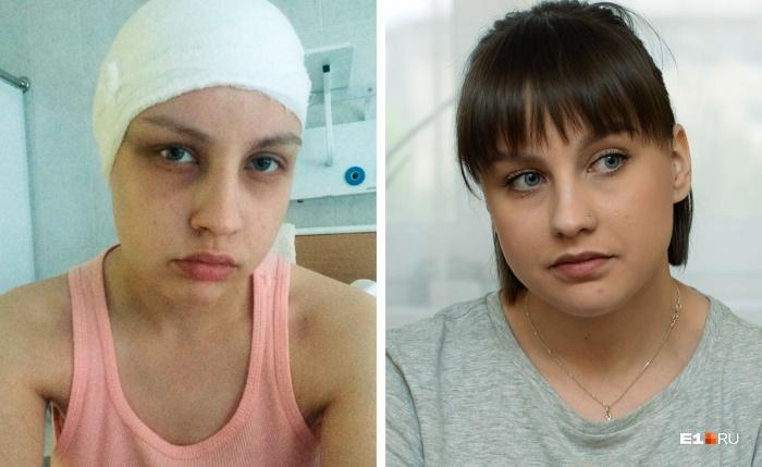 Год назад Насте сделали операцию