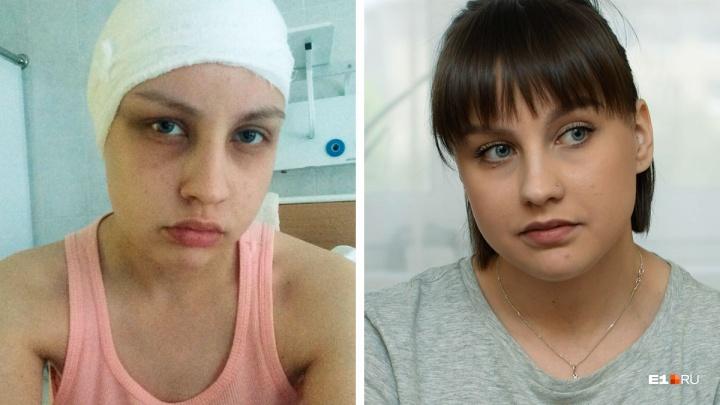 «Смотрела на шов по всей голове и ревела»: что стало с девушкой, сбитой экс-полицейским на Урале
