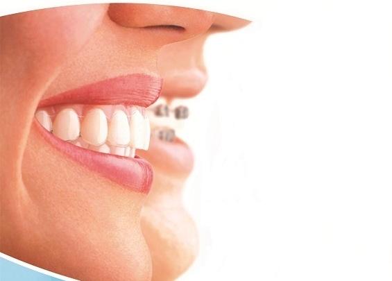 Революция в ортодонтии: американские элайнеры на 100 тысяч дешевле