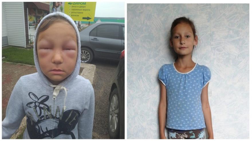 В Башкирии восьмилетнего ребенка до полусмерти покусали соседские пчелы
