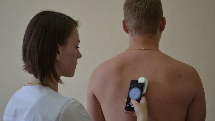 Екатеринбурженка создала приложение, которое проверяет родинки на рак