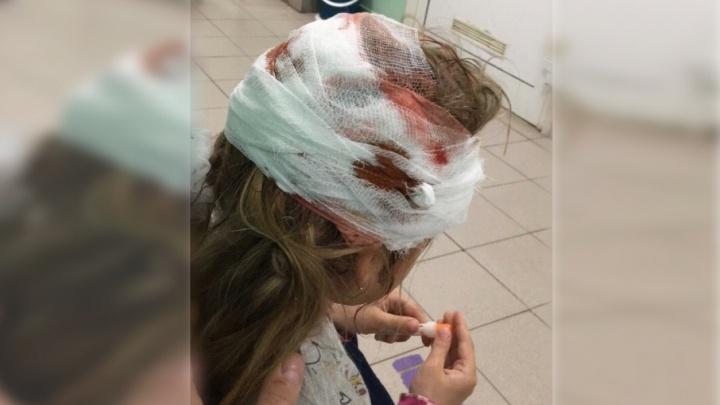 Наложили 14 швов: в Тюмени пятилетнюю девочку покусала сторожевая собака