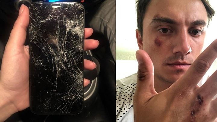 Таксист попал под уголовное дело за драку с пассажиром-фокусником