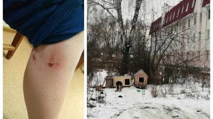В Березовском стая бродячих собак напала на ребенка