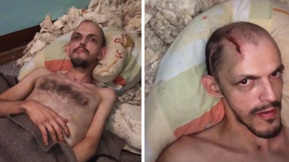 В больнице в ответ на обвинения заявили, что мужчина вёл себя слишком агрессивно: сломал кровать, раковину и краны, порвал несколько матрасов