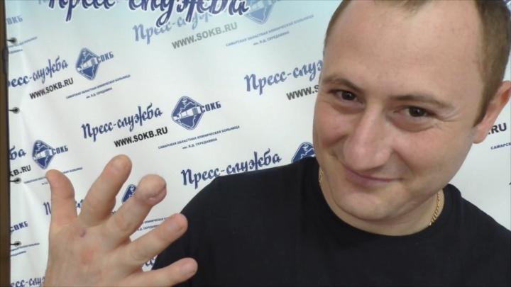 Пришили к животу: врачи из самарской больницы имени Середавина спасли оторванный палец пациента
