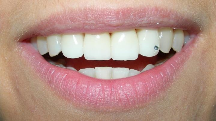 Тест: как сделать улыбку белоснежной?