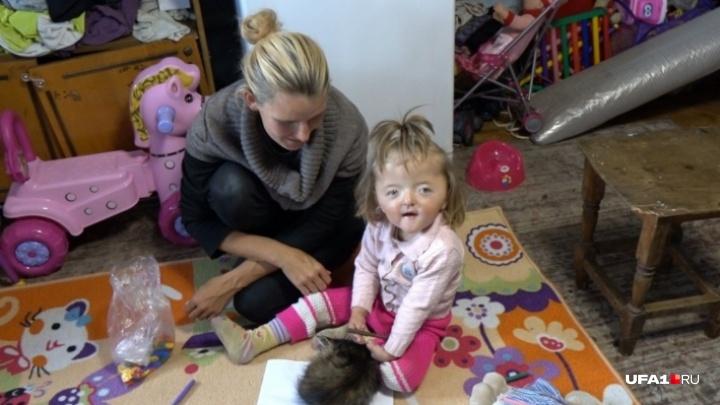 Девочка с деформированным лицом из Башкирии улетела в Израиль на лечение