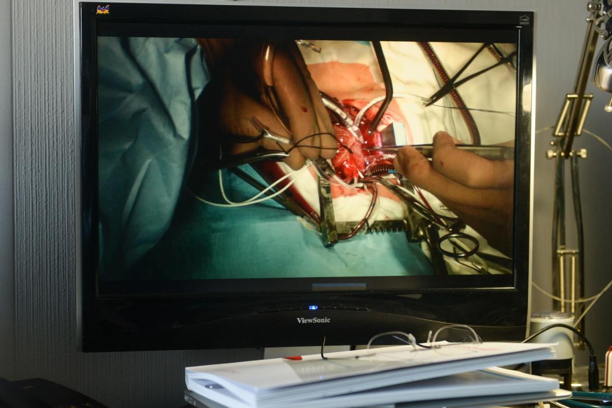 В отделении Константина Казанцева ежегодно выполняется по 12–17 операций по артериальному переключению новорожденным