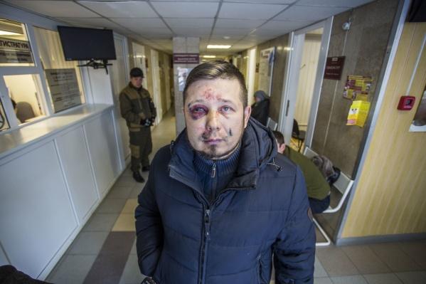В полиции возбудили уголовное дело по избиению общественника Андрея Радаева