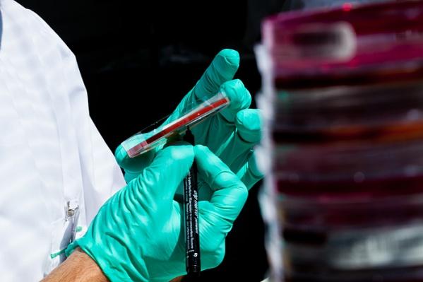 Общий клинический анализ определяет основные качественные и количественные характеристики крови
