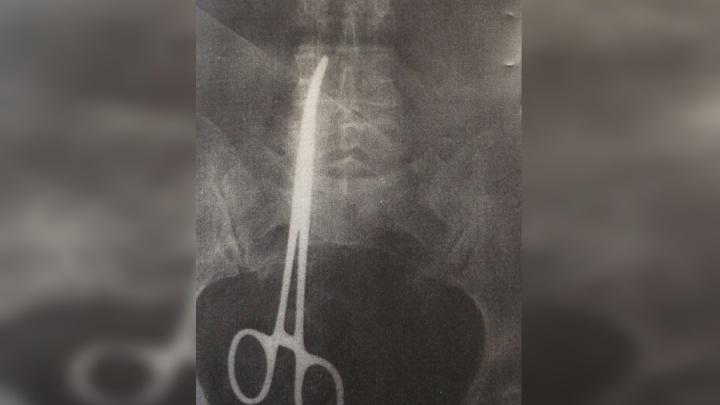 В животе женщины во время операции оставили металлический зажим. Возбуждено уголовное дело