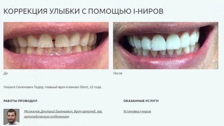 Наш ответ «голливудской улыбке»: найдена российская альтернатива американским люминирам