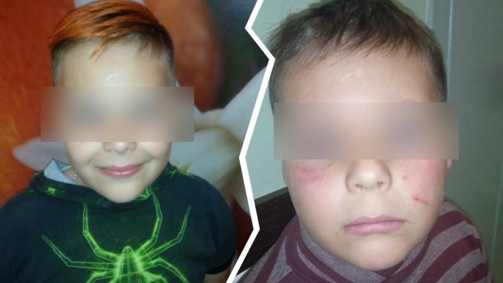 «Накинулись, рукой обхватили шею и били»: мать школьника рассказала о групповом избиении сына