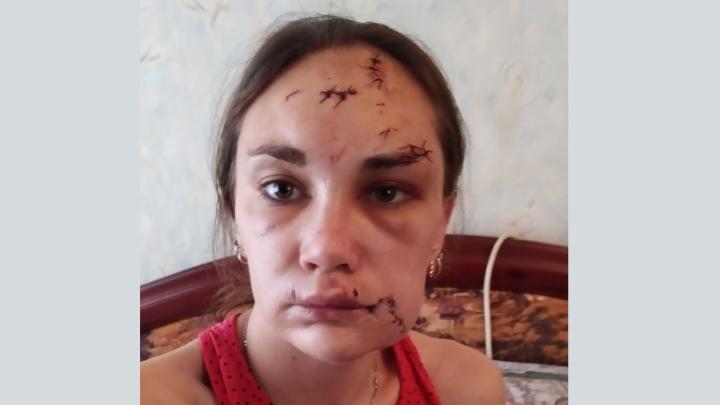 Из Урюпинска в Москву: изуродованную экс-мужем волгоградку сделали телезвездой Первого канала